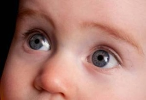 Коньюктивит у новорожденных: лечение и профилактика